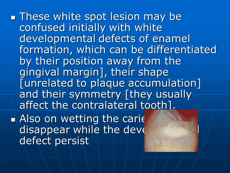 These white spot lesion may be confused initially with white developmental defects of enamel formation, which can be differentiated by their position away from the gingival margin], their shape [unrelated to plaque accumulation] and their symmetry [they usually affect the contralateral tooth].